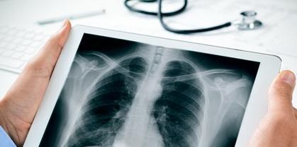 Как стандарты МЭК на рентгенотехнику помогают увидеть полную картину